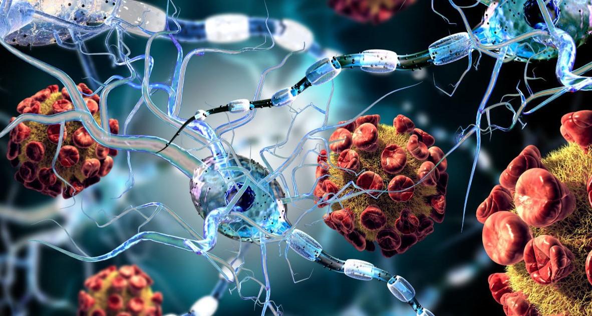 MANIFESTAÇÕES NEUROLÓGICAS COVID-19 (NOVO)